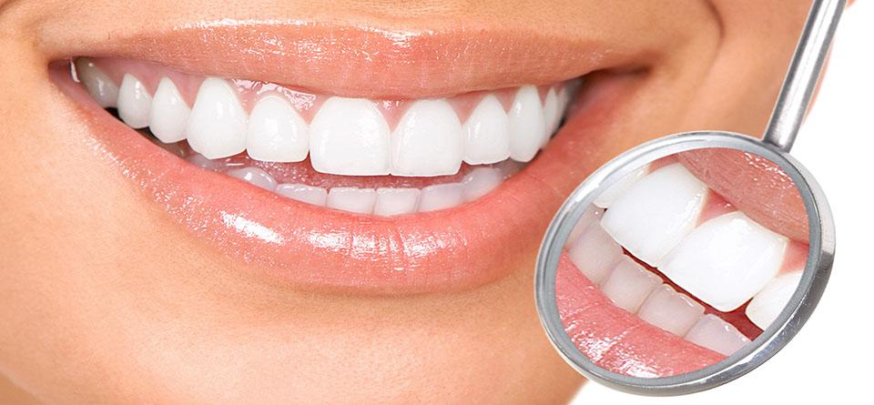 Burnos higiena ir dantų balinimas