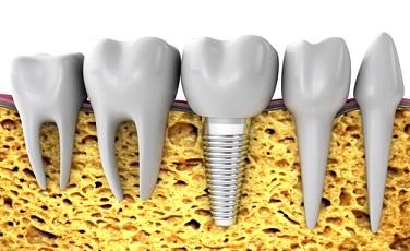 Protezavimas ir implantacija