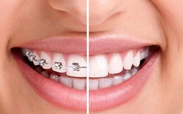 Ortodontinis gydymas, breketai